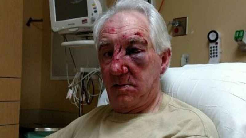 Officials released this photo of a man who was severely beaten after a road rage incident in the northern Twin Cities metro area.